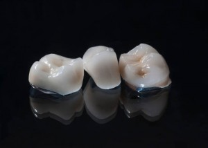 Porcelain Fused to Metal Restorations